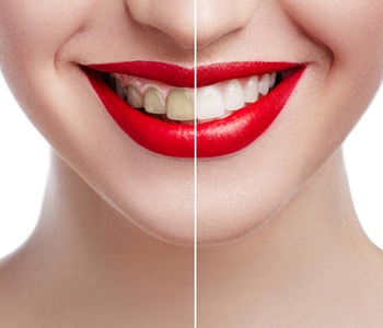 South Lakewood Dental Porcelain veneers and other cosmetic services offered by Lakewood area dentist