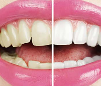South Lakewood Dental Is professional teeth bleaching available to Lakewood area patients?