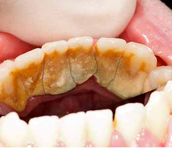dentist describes effective gum disease treatment options