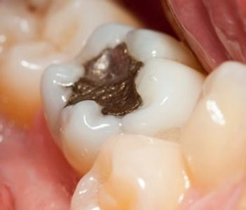 Dr. Scott Stewart at South Lakewood Dental helps to avoid mercury poisoning with composite fillings.