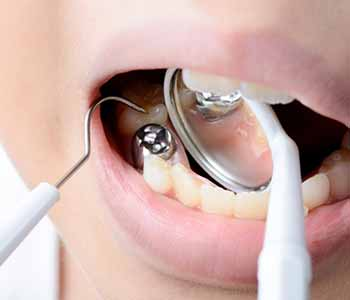 South Lakewood Dental Lakewood area dentist describes the removal of mercury fillings