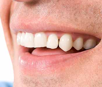 dentist answers, what is gum disease?
