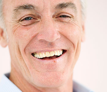Full cosmetic dentures are available at South Lakewood Dental