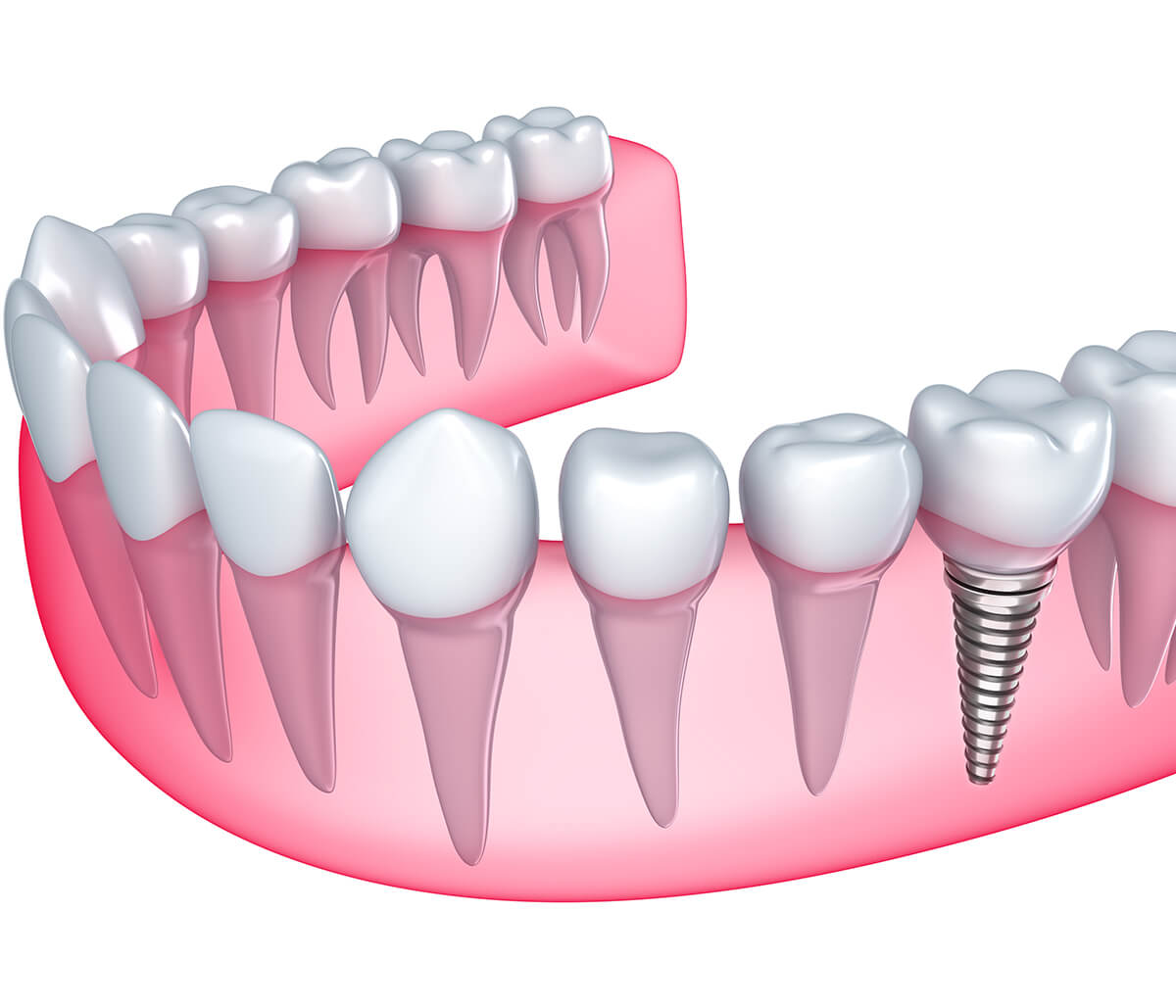 Why You Should Consider Dental Implants for Missing Teeth in Lakewood, CO Area