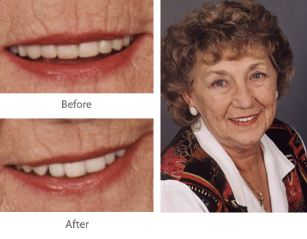 Before and After Dental Treatment Case