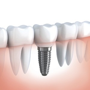 Dental Implants Lakewood CO Photo